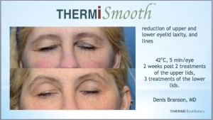Thermi Smooth