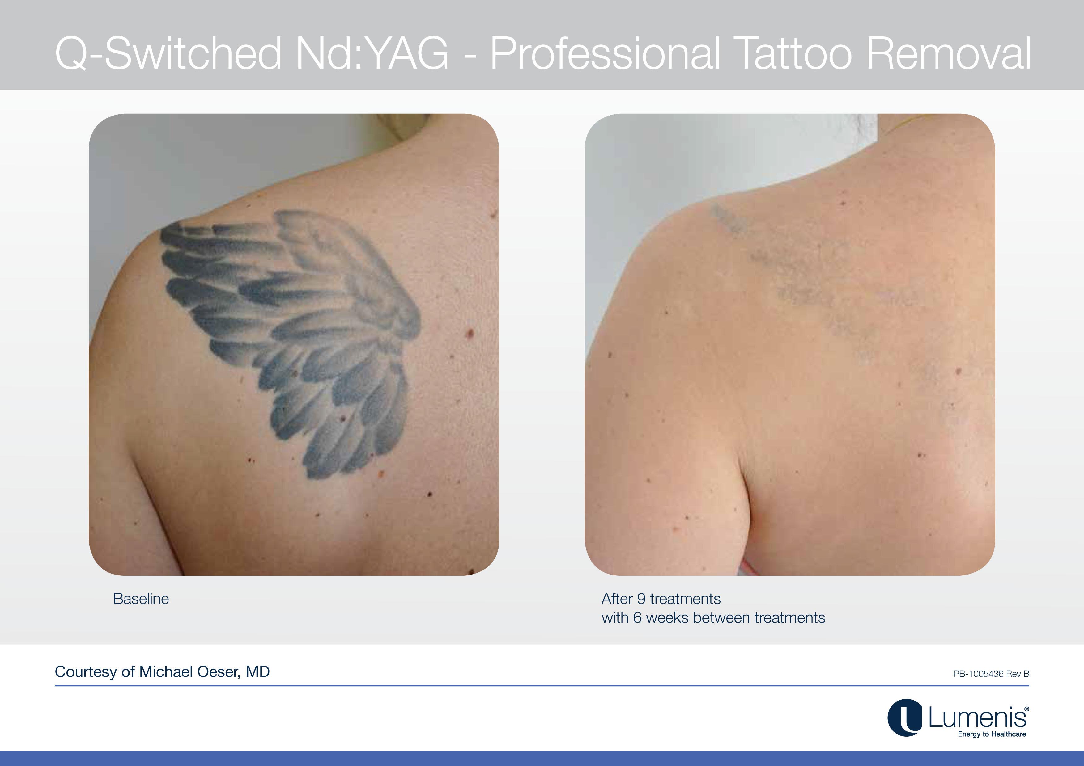 Tattoo removal with tattoo machine